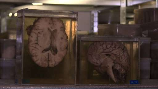 The brains could help uncover new discoveries in biological psychiatry science, a field that specialises in understanding mental