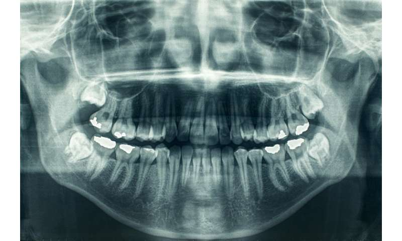 The cavity in health insurance coverage—oral health