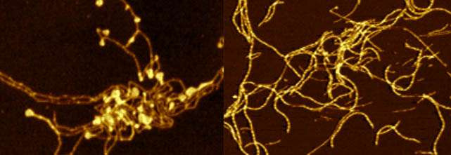 Tiny changes in Parkinson's protein can have 'dramatic' impact on processes behind onset