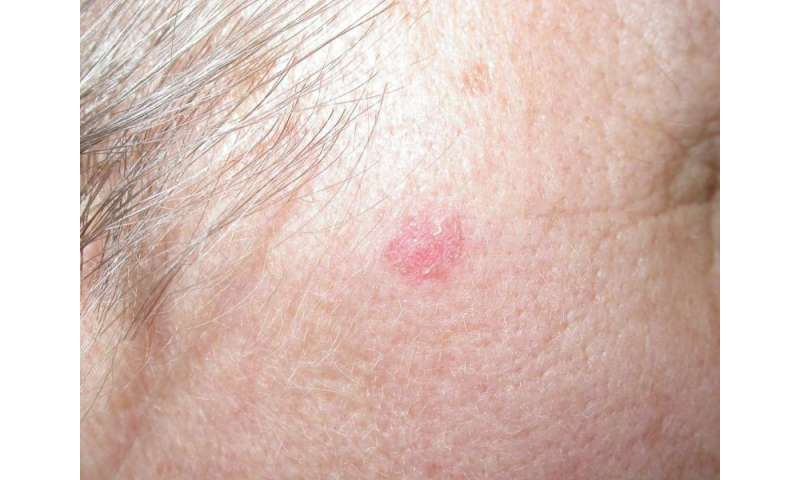 Topical skin cream for treatment of basal cell carcinoma shows promise as an alternative to surgery