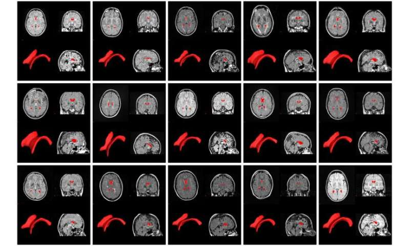 Tracking brain atrophy in MS could become routine, thanks to software developed at UB