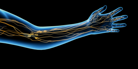 Treating the inflammation in lymphedema