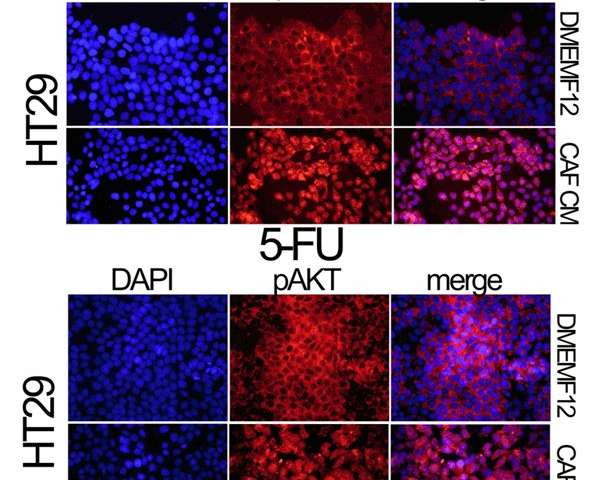 Tumor microenvironment acts as a mechanism of resistance to chemotherapy