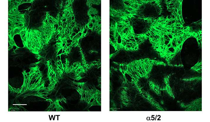 Two new studies explore the science of cardiovascular diseases