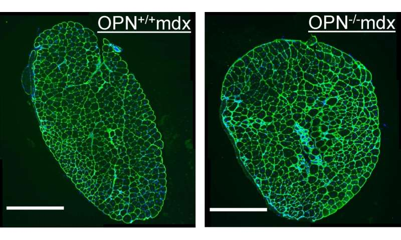 UCLA scientists reveal how osteopontin ablation ameliorates muscular dystrophy