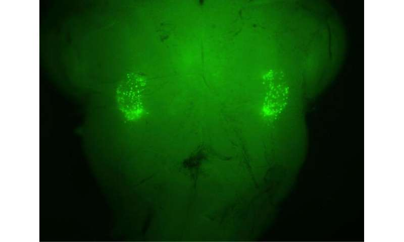 UCLA-Stanford researchers pinpoint origin of sighing reflex in the brain