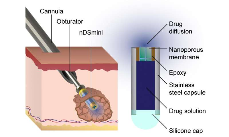 UTSA study describes new minimally invasive device to treat cancer and other illnesses