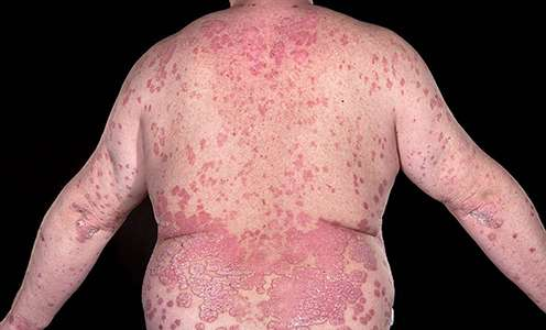 Weight loss reduces psoriasis symptoms
