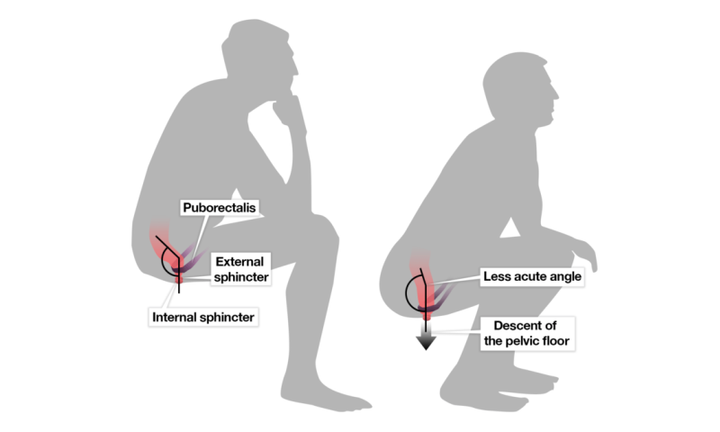 What's the best way to go to the toilet – squatting or sitting?