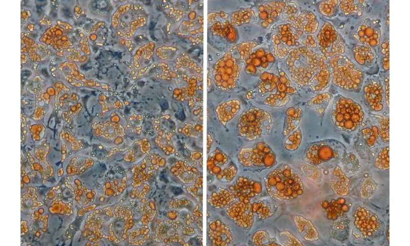 When fat cells change their color