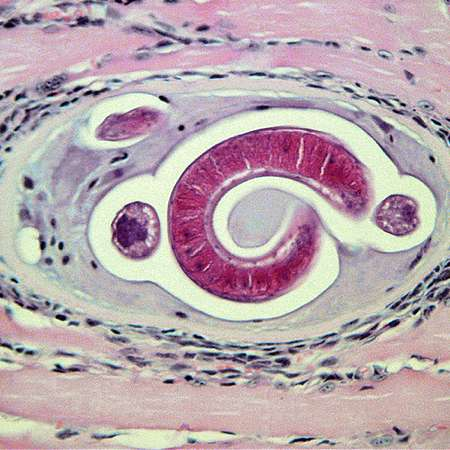 Worms use immune system to extract food from cells