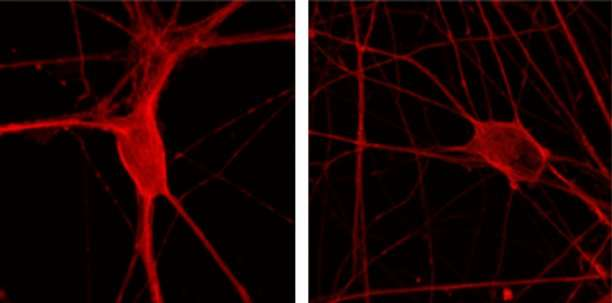Researchers pinpoint pathway to muscle paralysis