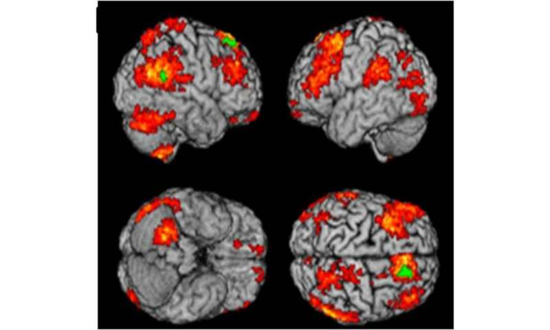 A brain scan to tell if you're depressed—and what ...