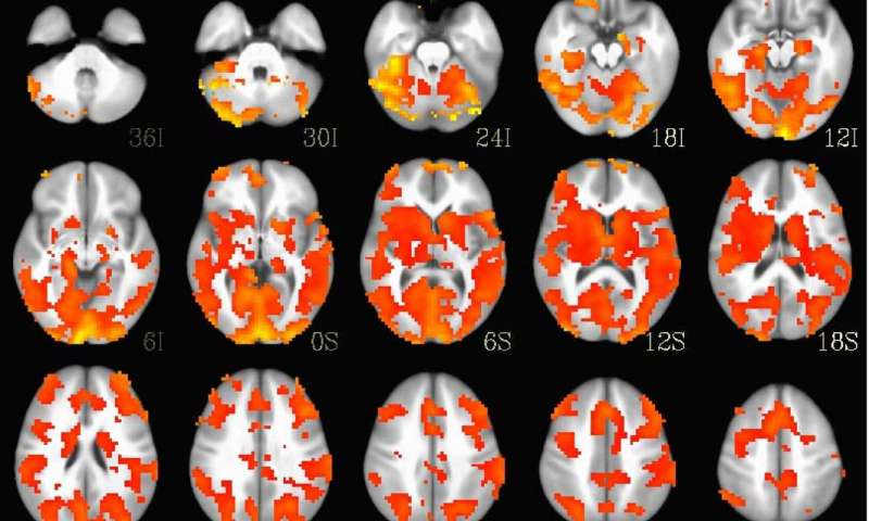 AI that can shoot down fighter planes helps treat bipolar disorder