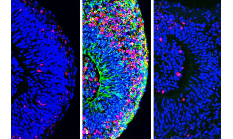 Better mini brains could help scientists identify treatments for Zika-related brain damage