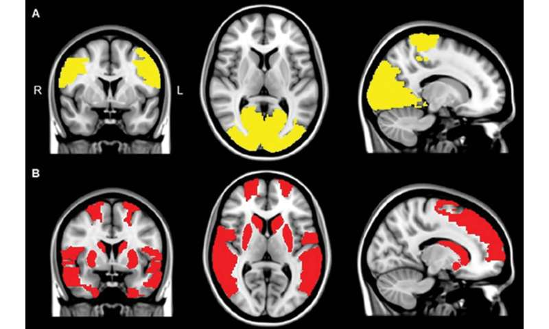 Brain disconnections may contribute to Parkinson's hallucinations