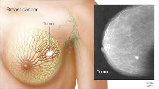 Breast Cancer Study Provides Critical Information On Tumor
