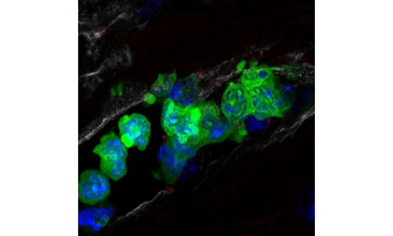 CNIC scientists discover how a decades-old drug reduces the size of a heart attack