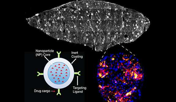 Combining machine and nanoparticles for better transplant outcome