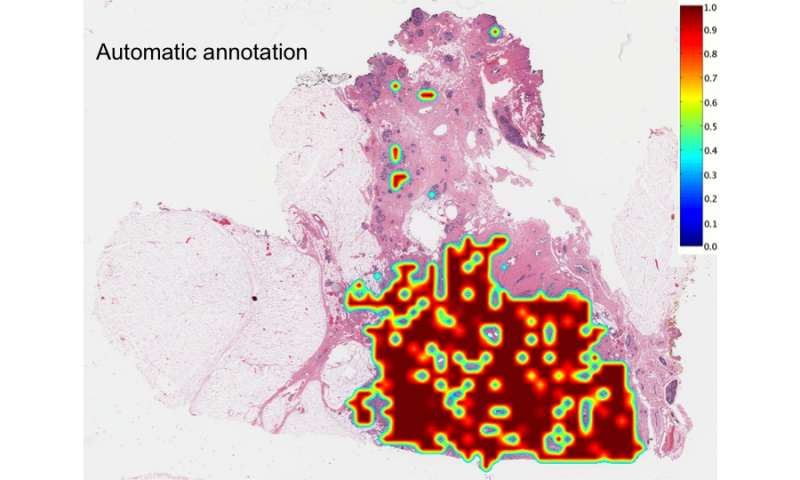 Computer accurately identifies and delineates breast cancers on digital tissue slides