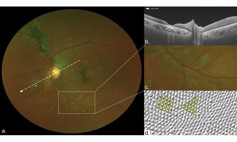 Ebola survivors have a 'unique' retinal scar