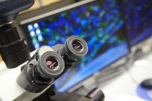 Gene discovered associated with Tau pathology