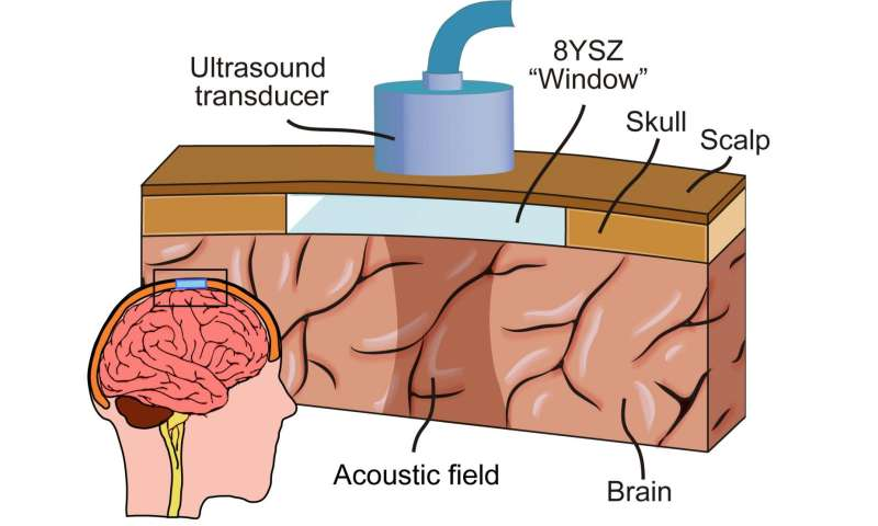 Getting therapeutic sound waves through thick skulls