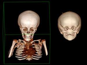 Mutation found in patients without a nose
