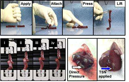 New harmless radiopaque glue to seal bleeding and guide surgery