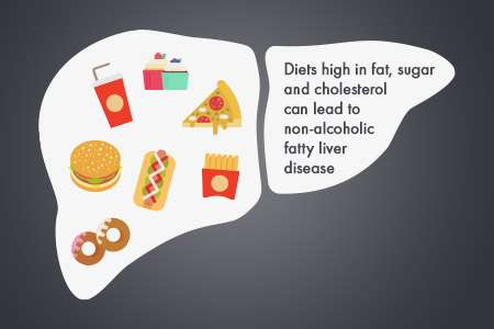 Of mice and cheeseburgers: Experimental drug reverses obesity-related liver disease