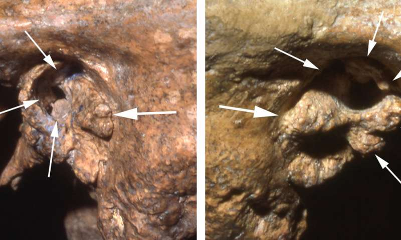 Older Neandertal survived with a little help from his friends