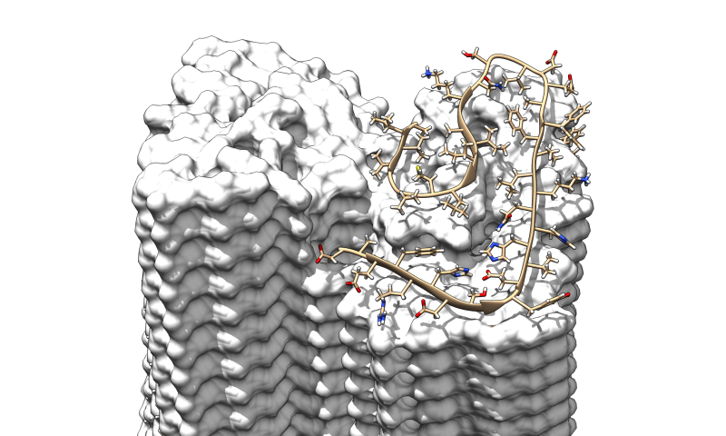 Science: Sharpest image of Alzheimer's fibrils shows previously unknown details