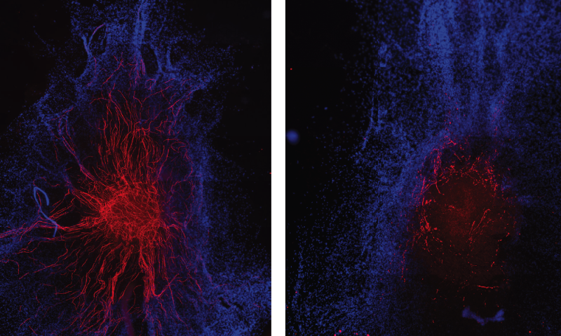 Scientists find RNA with special role in nerve healing process