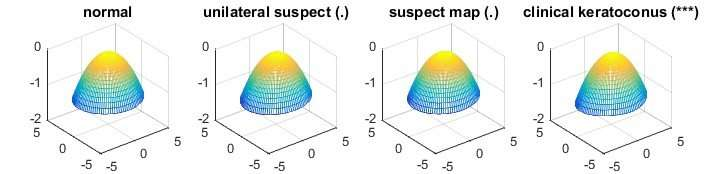 Statisticians develop efficient method for comparing multi-group, high-dimensional data