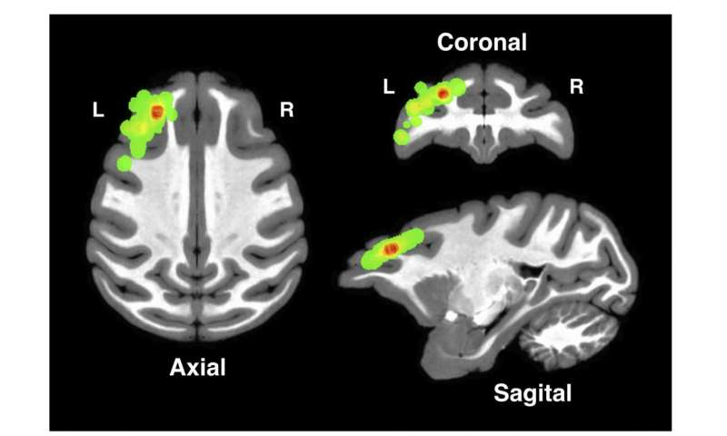 Study illustrates how the cortex assigns credit for causality