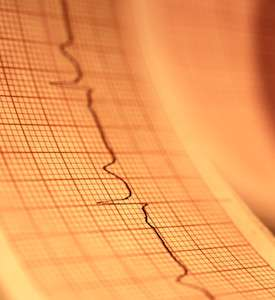 These 5 tests better predict heart disease risk