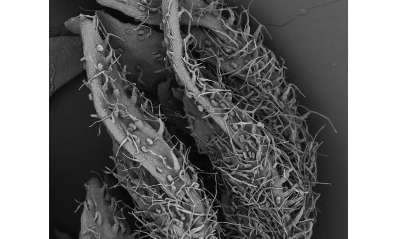 Transgenic plants against malaria