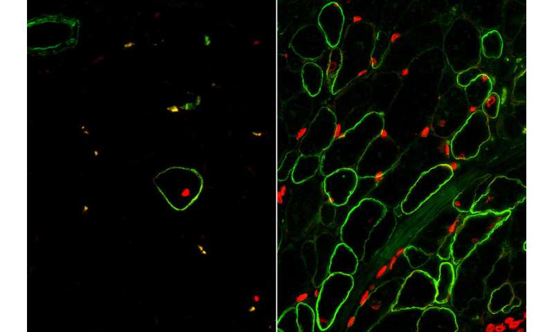 UCLA researchers create skeletal muscle from stem cells