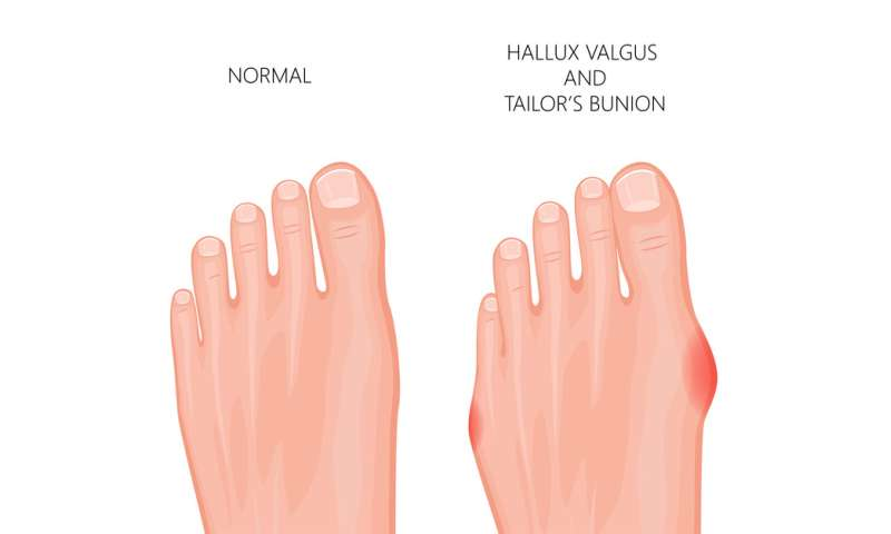 What is a bunion and do I need to get mine treated?