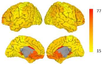 Researchers find shifting relationship between flexibility, modularity in the brain