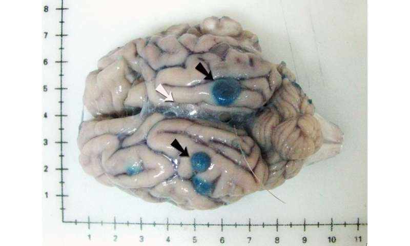 Tapeworm Parasite >> New Treatment Investigated For Brain Tapeworm Infection