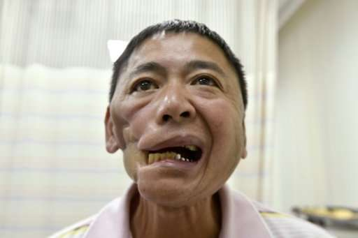 Former addict Chen Yung-an wishes he had believed his doctor when told he had early signs of oral cancer two decades ago.