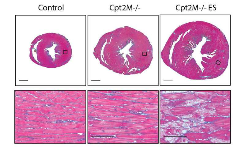 Study finds that fat fuel is needed to reverse cardiac hypertrophy