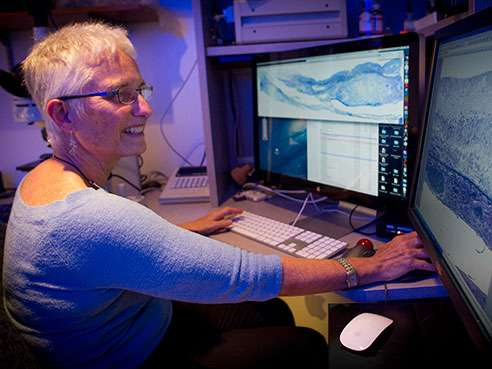 Researchers develop best-yet cell culture system for age-related macular degeneration