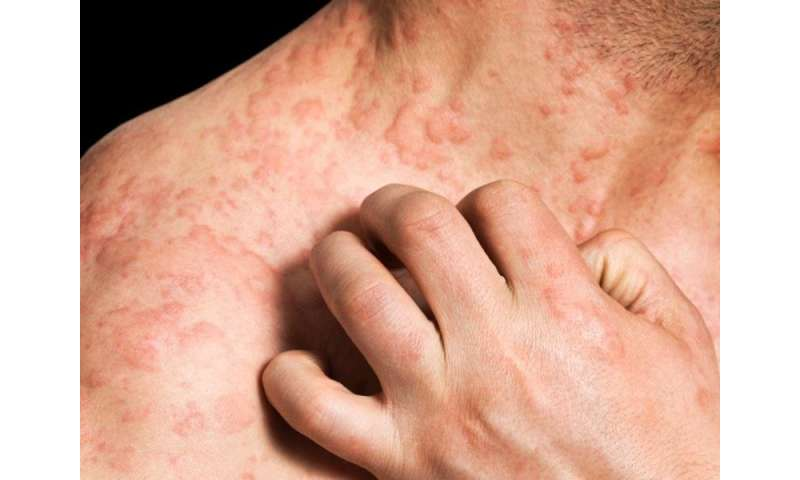 Atopic dermatitis associated with higher risk of skin cancer
