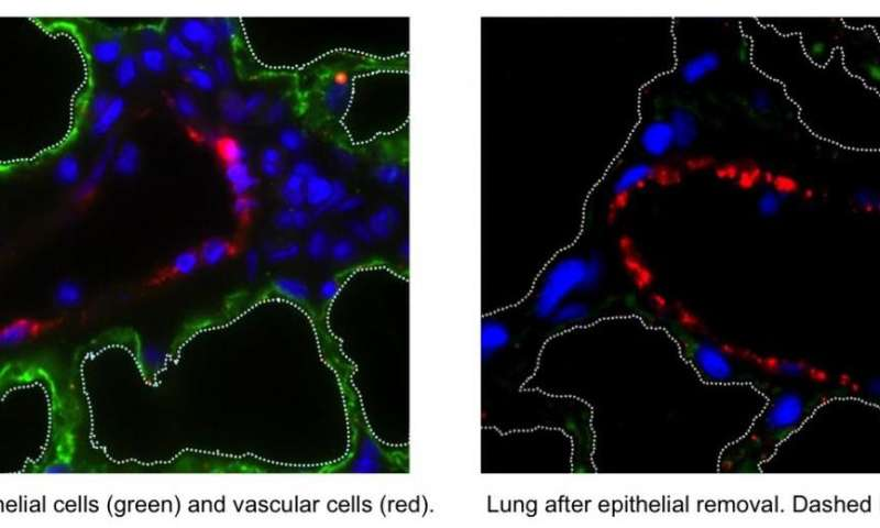 Columbia engineers and clinicians first to build a functional vascularized lung scaffold