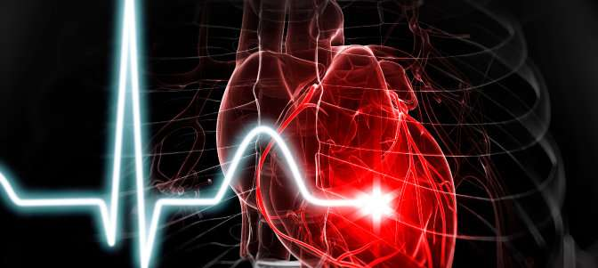 Heart disease and stroke deaths decline slightly, new statistics find