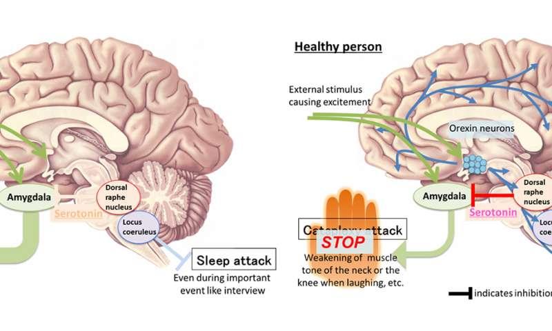 Identification of the neuronal suppressor of cataplexy, sudden weakening of muscle tone