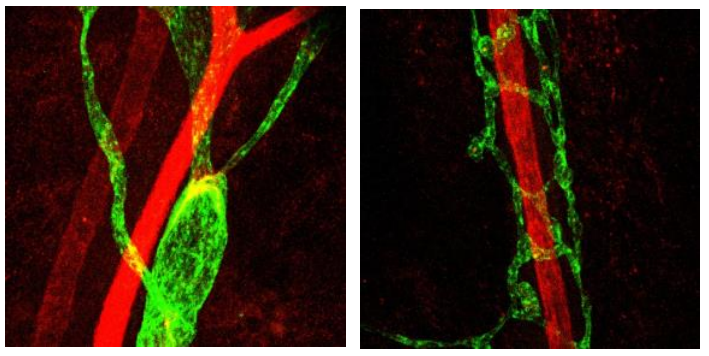 Identification of protein crucial to lymphatic system development