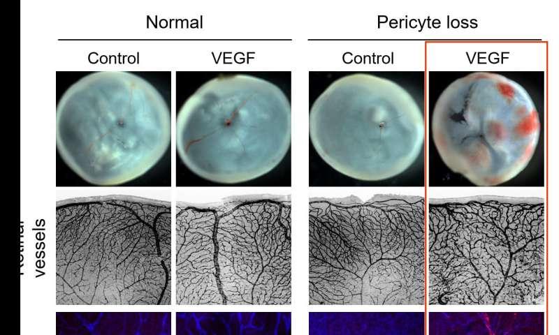 Loss of pericytes deteriorates retinal environment